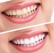 4 главных минуса отбеливания зубов