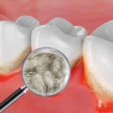 Что способствует выживанию бактерий зубного налёта?