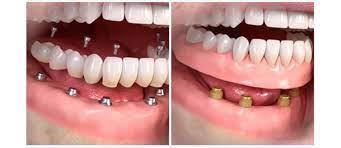 Покрывной протез при полном отсутствии зубов