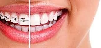 Программируемый элайнер сократит время и стоимость ортодонтического лечения